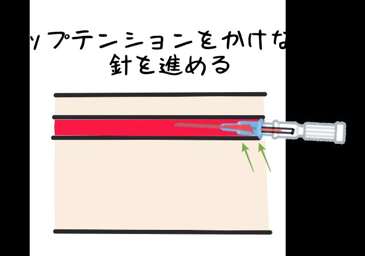 留置針(サーフロー),挿入,コツ